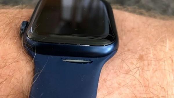 售价379元不到一年就断了:苹果用户吐槽Apple Watch 6单圈表带质量堪忧